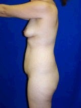 Tummy Tuck (Abdominoplasty), Breast Enhancement 429758