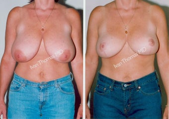 Breast Reduction before 243748