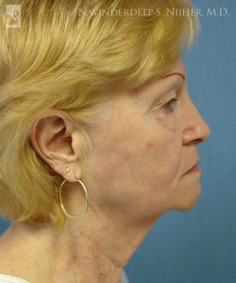 Facelift, Eyelid Surgery & Chin Implant before 501564