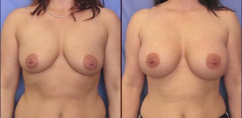 Breast augmentation before 142818