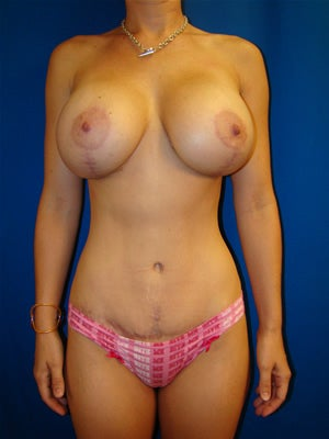 Tummy Tuck, Breast Augmentation with Breast Lift after 131961