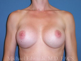 Breast Augmentation with moderate profile silicone implants after 88333