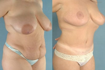 Abdminoplasty/Breast Reduction/Areola Reduction before 100268