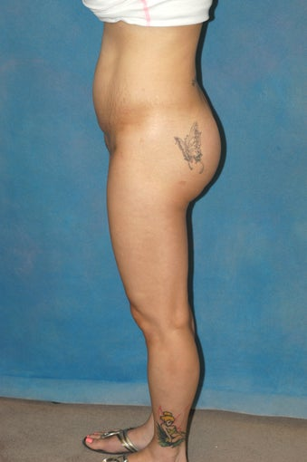 Women's Buttocks Augmentation   after 518133