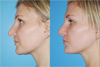 Rhinoplasty after 388996