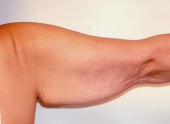 Brachioplasty (Arm Lift) After Massive Weight Loss (Posterior View) before 65366