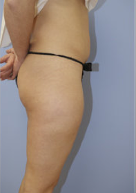 Liposuction before 500528
