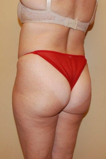 Buttock Augmentation before 516167