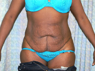 Tummy Tuck before 447552