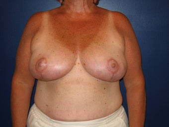 Breast Reduction after 119400