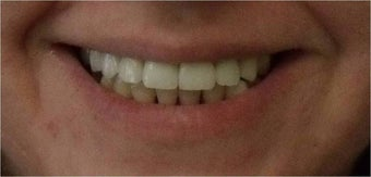 Smile Makeover with crowns and veneers after 367209