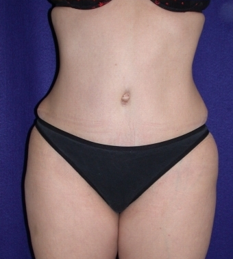 Tummy Tuck (abdominoplasty) after 208470