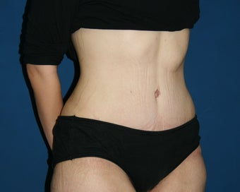 Abdominoplasty 644794
