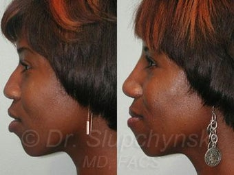 African American Rhinoplasty before 374006