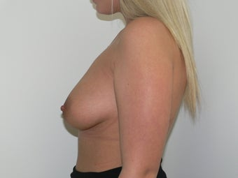 Breast Augmentation before 613588