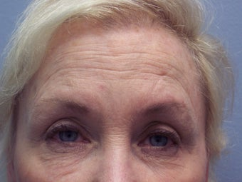 Brow lift before 593748