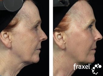 Fraxel for skin tightening before 8532