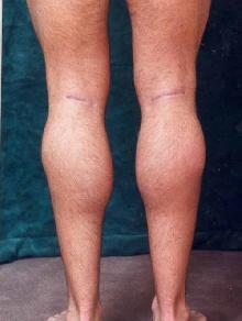 Men's Calf Augmentation  after 519054