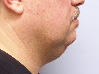 Chin/Neck Liposuction before 593084