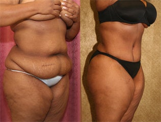 abdominoplasty before 232458
