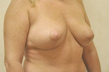 Breast Lift without Implants 341012