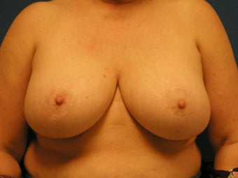 Breast Reduction after 475931