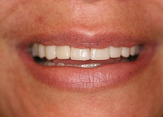 Smile makeover with Lumineers and Invisalign after 109373
