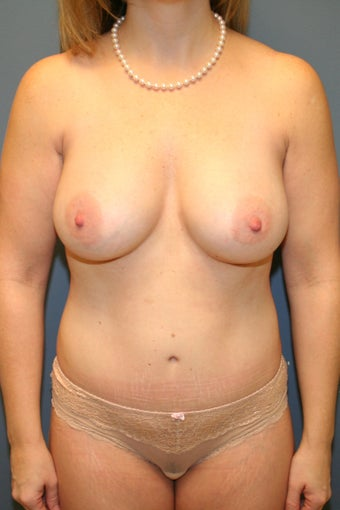 Mommy Makeover Breast augmentation and tummy tuck after 539084