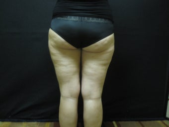 Cellulaze - Cellulite Treatment before 491255
