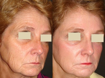 Fraxel Laser Treatment before 96255