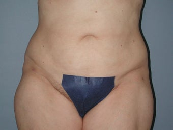 Liposuction hips, waist, upper and lower abdomen, lateral thighs after 581418