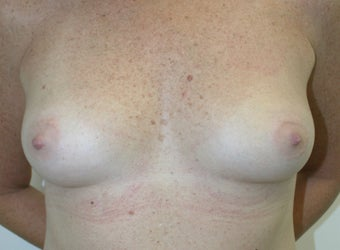Breast Reconstruction before 526305