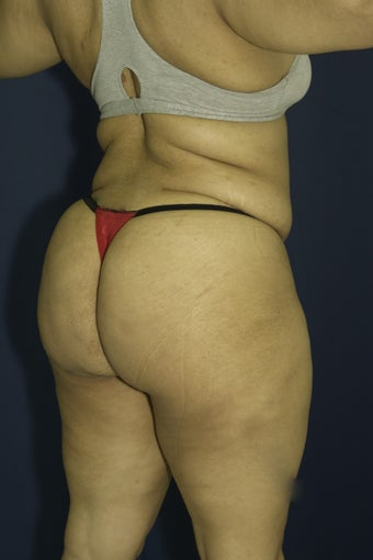 Brazilian Butt Lift surgery (liposuction to multiple areas and fat grafting to buttock) after 606611