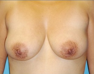Breast Augmentation with full lift