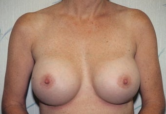 Breast Augmentation after 266793