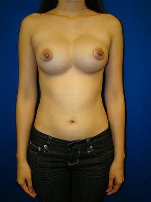 Breast Reconstruction Symmastia Repair before 121759
