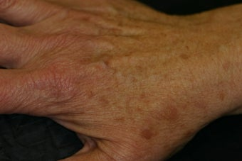 IPL laser for the hands after 411327