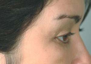 Latisse for eyelashes before 151333