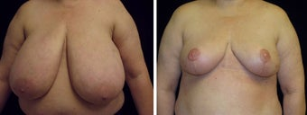 45 year old female, breast reduction before 630933