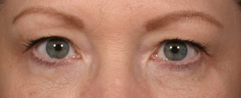 Eyelid surgery after 140086
