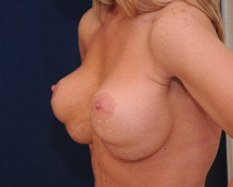 breast implant revision 334113