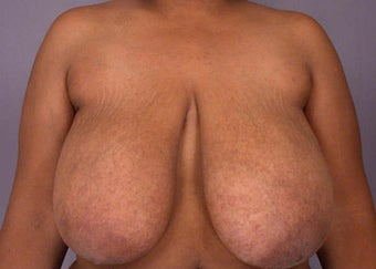 Breast Reduction before 285328