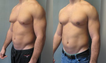 Gynecomastia New York after 349231