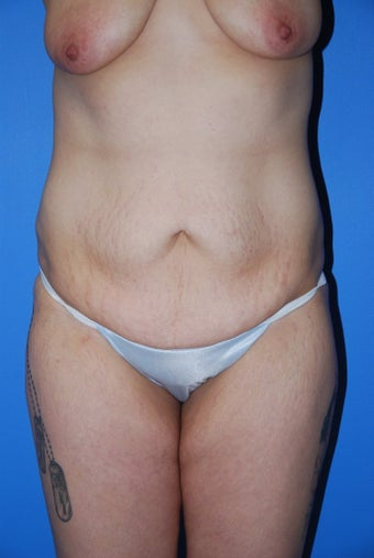 Abdominoplasty  before 342442