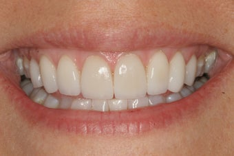 Smile Makeover with 8 Veneers after 206797