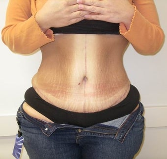 Abdominoplasty and Liposuction after massive weight loss after 615720