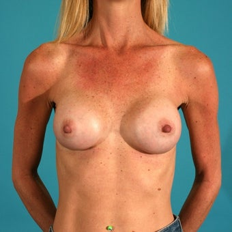 Breast augmentation with saline implants after 53601