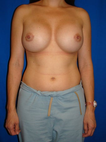 Breast Augmentation Revision after 78865