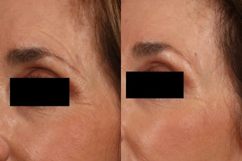 Ultherapy Eyelid Lift before 615727