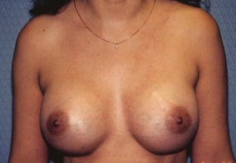 Breast Augmentation after 266786
